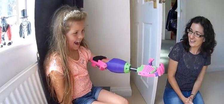 Una bambina riceve il suo nuovo braccio stampato in 3D. La reazione è stupenda.